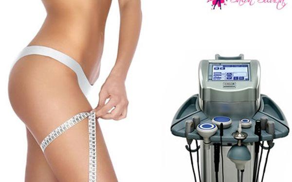 Výjimečná nabídka dárkového kuponu na kompletní služby salonu Silueta včetně ošetření liposukce se slevou 51%.