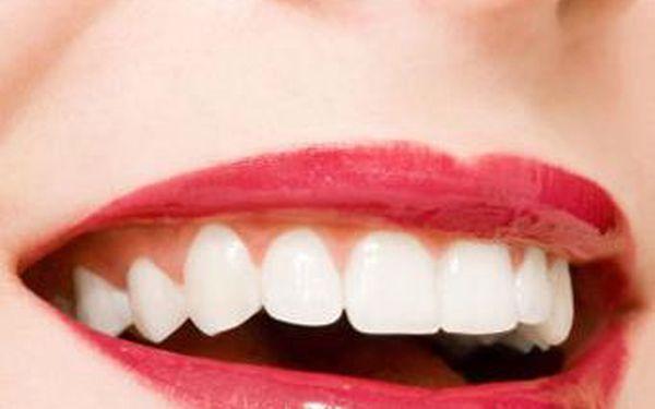 Jen 599 Kč za bělení zubů včetně čištění! Využijte této skvělé akce a dodejte Vašemu úsměvu dokonalost.