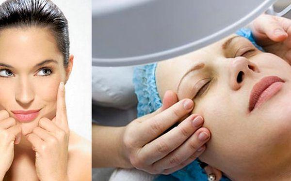 Kožní obnova - buněčná regenerace! 2x Chemický peeling - Peeling se provádí na aknózní, mastnou a ochablou pleť. Pomůže na mimické vrásky, jizvy po akné a na pigmentové skvrny. Pro vás se slevou 52% za 644 Kč.