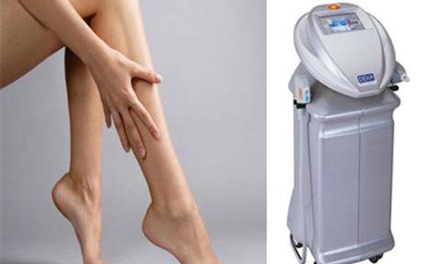 Ipl účinná trvalá epilace - nyní sbáječnou slevou 50!! Chcete mít jednou provždy hladkou pokožku bez chloupků?