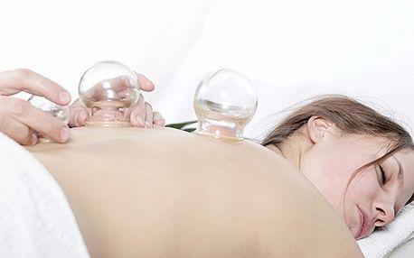 Rozhýbejte ztuhlé svaly baňkováním neboli vakuterapií!