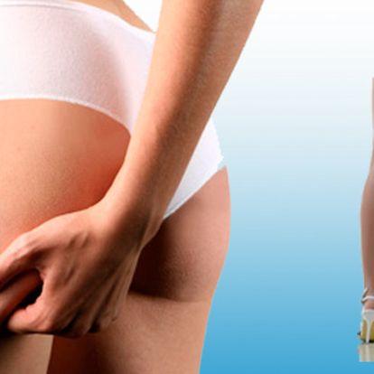Chcete se zbavit celulitidy na hýždích, stehnech a pase? Pak neváhejte a využijte naší skvělé slevy na radiofrekvenční liposukci TRIPOLLAR!