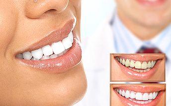 2499 Kč za špičkové, jednorázové bělení zubů v hodnotě 4500 Kč. Vybělení o 6-7 odstínů během jediné návštěvy! Prvotřídní péče Studia LISAP (OC Futurum) a zářivé zuby se slevou 44%.