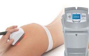 Cenová bomba!!! 70 - minútová kavitácia s najúčinnejším prístrojom na trhu. Zľava 60 % je skvelá, ale garantovaný výsledok po prvom ošetrení je ešte lepší! Zbavte sa celulitídy a rozprúďte Váš lymfatický systém.