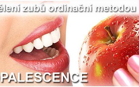 Krásný úsměv bez čekání ! Profesionální bělení zubů ordinační metodou Opalescence