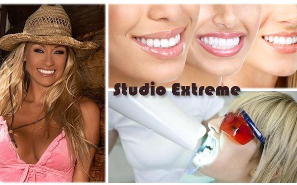 Získejte stejně krásný úsměv jako má MARTINA GAVRIELY ! NEOPAKOVATELNÁ CENA 1290 Kč za bělení zubů efektivní a bezpečnou metodou ve STUDIU estetiky a korektivní péče EXTREME se slevou až 71% !