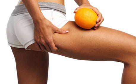 Luxusní anticelulitidní program ve studiu Belle. Program zahrnuje ruční odblokování lymfatických cest, prohřívající zábal a přístrojovou lymfodredáž. Jedinečné řešení, pokud Vás trápí celulitida, necítíte se dobře v letních šatech, máte pocit unavených nohou či se u Vás objevily první popraskané žilky. Udělejte něco pro své zdraví a krásu. Sleva 55 %.