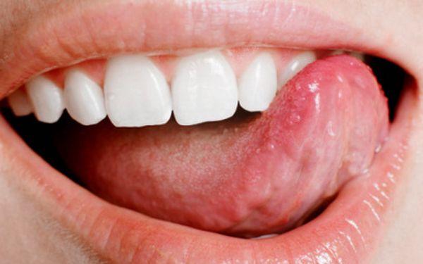Biele zuby za pár dní s bieličom WhiteLight len za 7,5 Eur namiesto 30 Eur!