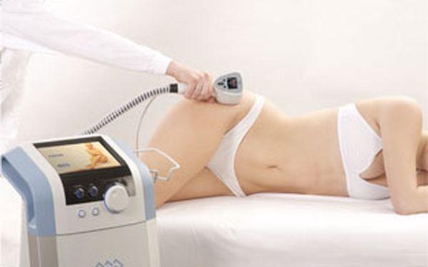 1190 Kč za liposukci 3. generace a lymfatickou masáž se slevou 66 %