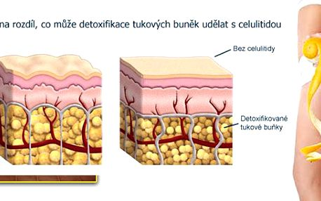 Přírodní liposukce a detoxikace. Za 60 minut pomocí Magic Wrap můžete ztratit až několik centimetrů, minimalizovat známky celulitidy a hlavně detoxikovat tělo.