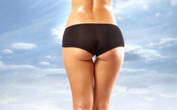 Kryolipolýza – liposukce zmražením se 78% slevou