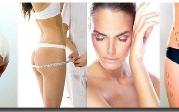Ultrazvuková liposukce na kladně! Zhubněte 2-8 cm díky kavitaci! 83% sleva na luxusní balíček ultrazvukové liposukce 3 v 1 + skořicová bahenní zábal s peelingem a vibromasáží. Zhubněte moderní, příjemnou alternativou chirurgické liposukce.