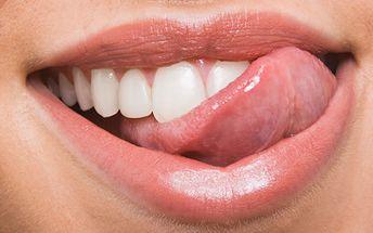 Bělení zubů jen za 1449 Kč! Bělostný úsměv se slevou 65 %!