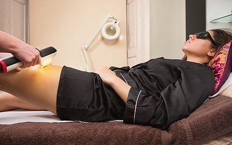 Bezbolestná fotoepilace pulsním světlem (IPL) jakékoli části těla