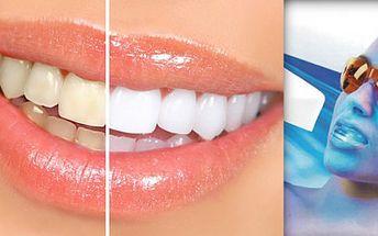 CENOVÁ BOMBA!!! SLEVA 75% za zářící úsměv a bělostné zuby během chvilky. Už je konec se schovávání zubů při úsměvu