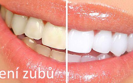 Úsměv jako z reklamy! Odborné bělení zubů na soukromé klinice Cspmod se slevou 42 %