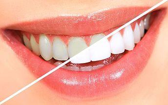 Toužíš po dokonalém hollywoodském úsměvu? Dopřej si bělení zubů bezpečnou, pohodlnou a šetrnou metodou newwhitesmile v salonu krásy france laure!!!