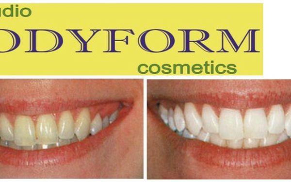 Zářivý úsměv za 1499 Kč. Zaručená a příjemná metoda bělení zubů Ultra Bright zesvětlí Vaše zuby až o 5 odstínů a Vy u toho můžete v klidu relaxovat.