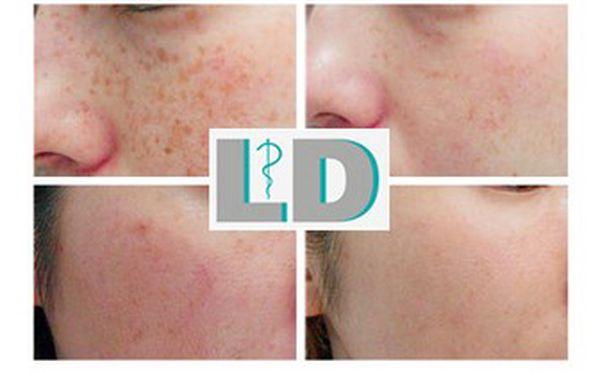 Konec pigmentovým skvrnám za pouhých 1 200 Kč! Zbavte se provždy nežádoucí pigmentace na obličeji a rukou pomocí laseru. Sleva 40 % v Lékařském domě, nadstandardní klinice s vysoce odborným týmem lékařů.