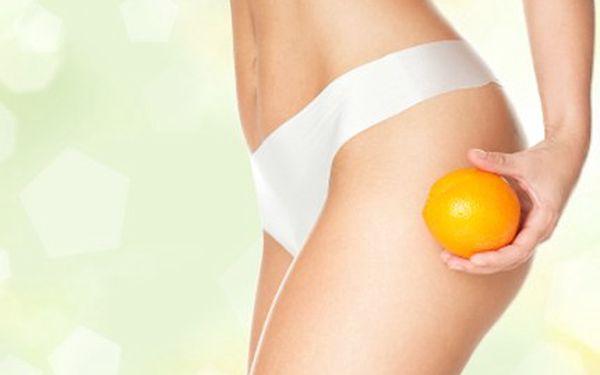 Zbavte se pomerančové kůže! Lymfatická drenáž ji přemůže! 63 % sleva na příjemné ošetření celulitidy pomocí přístroje Vacustyler.
