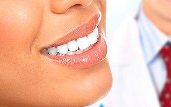 2995 Kč za špičkové bělení zubů v hodnotě 5990 Kč. Prvotřídní péče kliniky Estetika Dental přímo ve středu Prahy, ověřená a šetrná metoda WHITNESS HP (ordinační bělení) a zářivé zuby se slevou 50 %.