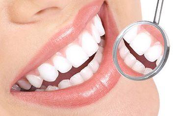 Zářivě bílý úsměv, o kterém se Vám často zdá. Buďte jako hollywoodská hvězda. 80% sleva na bělení zubů efektivní metodou ve studiu estetiky EXTREME spolumajitelky Martiny Gavriely.