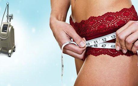 NESKUTEČNÁ sleva 90 % na Kryolipolýzu! Navíc dárek ZDARMA!!! Udělejte si místo na vánoční dobrůtky nebo si ulehčete novoroční předsevzetí. Poukazy jsou platné až do KVĚTNA 2012!