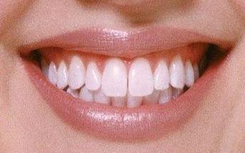 Bílé zuby za 1 měsíc! Nádherný a zářivý úsměv, o jakém jste vždy snili!!! Tužka na bělení zubů - novinka z USA atestovaná lékařskou komorou nyní jen za 590 Kč včetně poštovného.