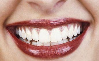 Chcete mít bílé zuby jako americká star? Nyní máte možnost zakoupit voucher za 1490Kč na bělení zubů v BBStudiu! Uvidíte, jak Vaše okolí bude reagovat na Váš zářivý úsměv!