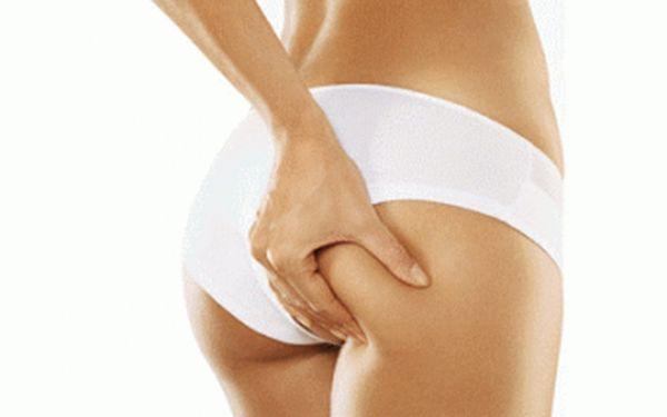 Jedinečnáneinvazivní liposukce 3. generace za skvělou cenu 449 Kč! Kompletní procedura (60 minut) = kavitace(30 min) + lymfodrenáž (30 min). Skvělá sleva 79 % na odstranění celulitidy a podkožního tuku libovolné partie Vašeho těla!