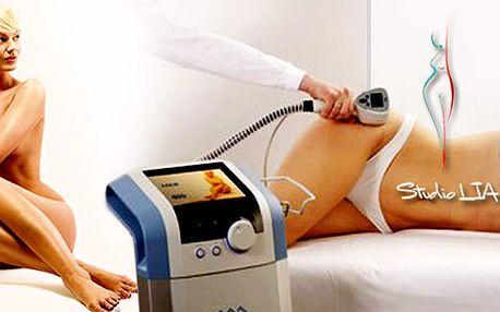 Bezbolestná liposukce přístrojem Exilis + půlhodinová kůra přístrojové lymfodrenáže. Perfektní výsledky, výrazná redukce tukové vrstvy. Ošetření 4 ploch - až 1000 cm2.