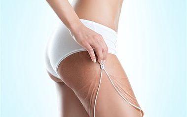 Pečujte o své nohy i pomocí lymfodrenáží. Budete to Vy, kdo v sukni zazáří. 50% sleva na přístrojovou lymfodrenáž, pomáhá odstraňovat otoky, celulitidu, bolesti nohou a zeštíhluje.