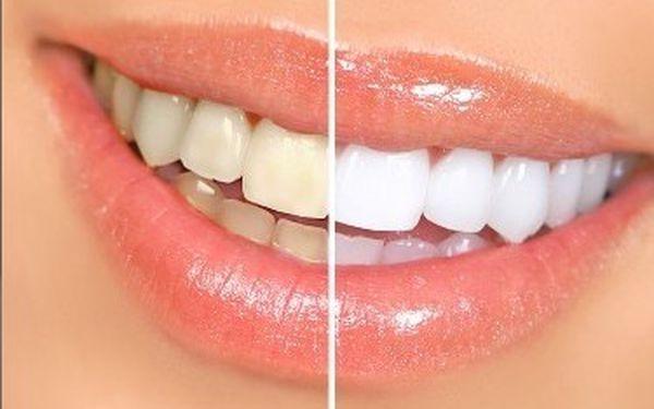 Bělení zubů za super cenu 499Kč, krátkodobá akce k Valentýnu, tak neváhej a získej zářivý úsměv na den lásky ve studiu EstheticForYou u Nového Smíchova.