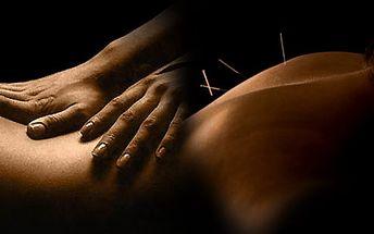 60% sleva na 60 minutovou odbornou péči fyzioterapie, rehabilitace , akupunktura! Dopřejte svému tělu zasloužený odpočinek a péči od profesionálů!!