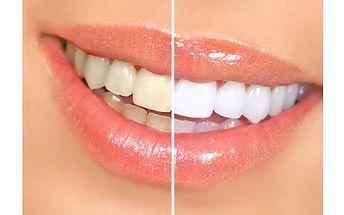 CENOVÁ BOMBA!!! SLEVA 83% za zářící úsměv a bělostné zuby během chvilky. Už je konec se schovávání zubů při úsměvu