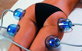 2 hodiny neinvazivní liposukce ve Studiu RealBeauty za skvělých 499 Kč! V ceně sestavení doporučeného jídelníčku a pravidelná kontrola vývoje hmotnosti a obsahu tuku a vody v těle. Proceduru zakončíme masáží v lymfatických kalhotách, která přispívá ke zlepšení funkce lymfatického systému a zvýšení účinků prováděné terapie. Ženy, jaro se blíží. Ukažme tedy světu své tělo a pleť dokonalejší a krásnější a zvyšme své sebevědomí. Zbavte se celulitidy a zeštíhlete se slevou 51 %!