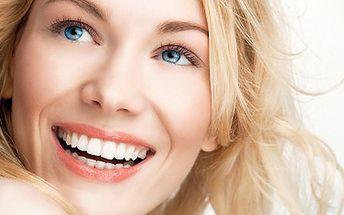 Bělení zubů podstupte! S zářivým úsměvem z davu vystupte. 50% sleva na bělení zubů UV lampou a pěnovými pásky, výsledky již po prvním ošetření. Buďte se svými zuby spokojeni.