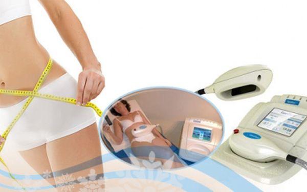 Tábor - Šokující sleva 93% na KRYOLIPOLÝZU! Liposukce nasátím a zmražením tukových buněk přístrojem LipoCryo! Dejte svá nadbytečná kila k ledu a to jen za 499 Kč!