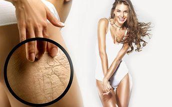 Štíhlejší postava díky MAGIC WRAP (tělový zábal) s 57 % slevou! Za 60 minut můžete pomocí tohoto ošetření ztratit 15 až 30 centimetrů na celém těle, minimalizovat známky celulitidy, vylepšit vzhled Vaší kůže a detoxikovat tělo.