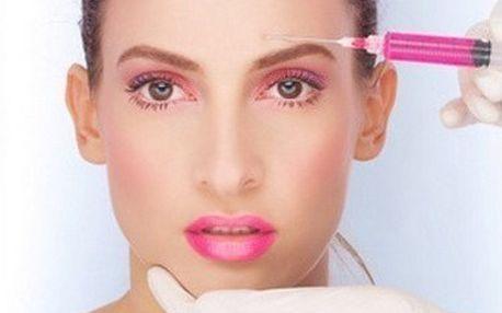 Mezoterapie obličeje kyselinou hyaluronovou a komplexem vitamínů u profesionálů z estetické medicíny.