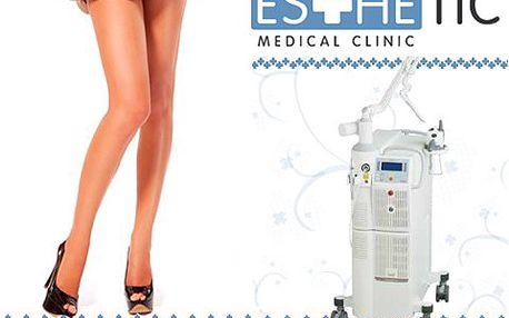 Hodinové frakční ošetření laserem vás zbaví nevzhledných žilek na nohou! Radujte se ze sexy nohou a vytáhněte bez obav krátké sukně a kalhoty!