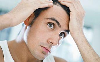 10 x ošetření pro růst vlasů- biostimulační laserová sprcha Ošetření představuje účinný boj proti alopecii. Nemusíte podstupovat transplantaci vlasů. Využijte tuto alternativu.