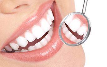 Profesionální BĚLENÍ ZUBŮ metodou FGM Bělení obou čelistí pomocí speciální lampy v délce 20 minut a leštění skloviny zubů. 60 minutová procedura vhodná před svatbou, focením či oslavou.