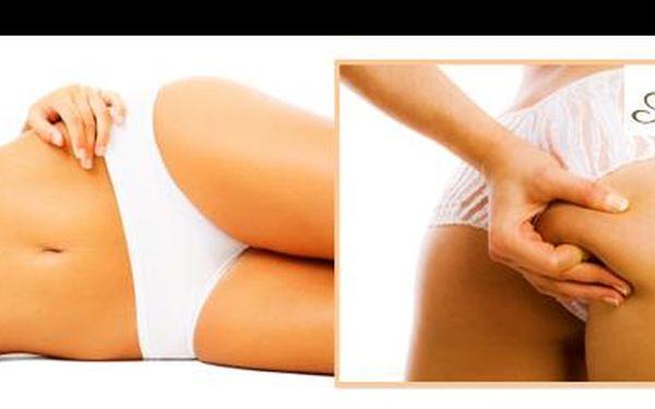 Zhubni a vytvaruj své tělo do plavek! S kuponem za 49Kč získáváš 62% slevu na kavitaci, což je bezbolestná metoda na odstranění tuku a vyhlazení celulitidy