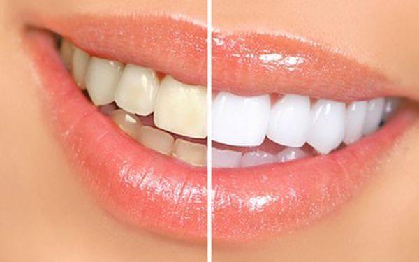 Bělení zubů - reprezentující a krásné zuby. Přivítejte sluné dny s krásným úsměvem za pouhých 599 Kč. Bezbolestná metoda bez dlouhotrvající citlivosti zubů.