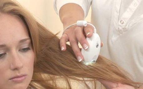 Vlasová diagnostika analyzátorem TricoCamera. Profesionální poradenství a řešení problémů s vypadáváním vlasů, lupy, lupénkou.