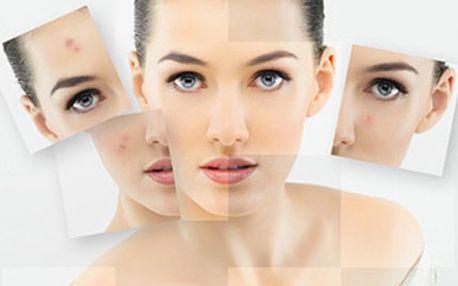MEZOTERAPIE: ošetření kůže kmenovými buňkami Účinné a efektivní ošetření vrásek, akné i pigmentových skvrn pomocí mezoterapie. Metoda je bezbolestná a neinvazivní, probíhá aplikací na rozrušenou pokožku.