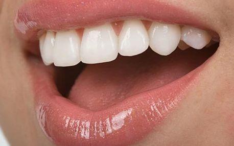 Zbavte se rychle a účinně zubního plaku a zabarvení zubů metodou Air Flow z rukou profesionálů na Praze 3.