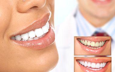 Bělení zubů - reprezentující a krásné zuby za pouhých 599 kč. Bezbolestná metoda bez dlouhotrvající citlivosti zubů a bez peroxidu. Úžasná sleva 76 %!