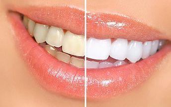 Studio EstheticForYou Praha 5 Ženské domovy. Bělení zubů, krásný úsměv je základem osobního kontaktu, získejte krásné bílé zuby. Důkazem je plno spokojených zákazníků. Bezbolestná aplikace, která vydrží velmi dlouho. Neváhejte! Už se na Vás těšíme.